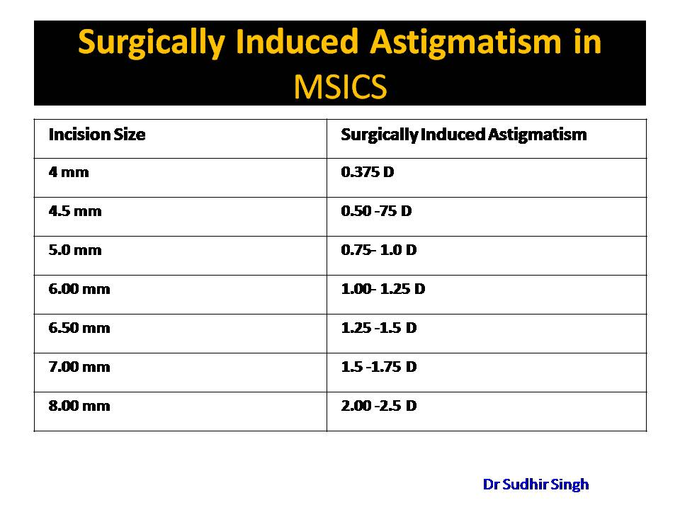 surgically induced astigmatism (sia) induced multifocal vision by, Skeleton